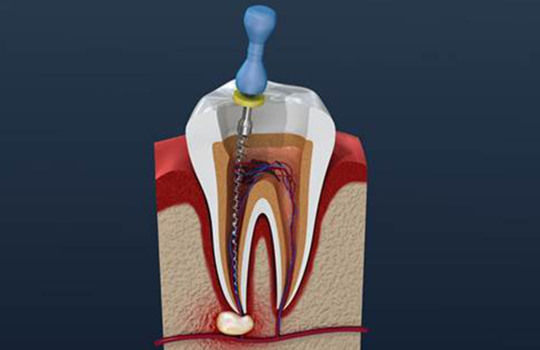 root-canal-new